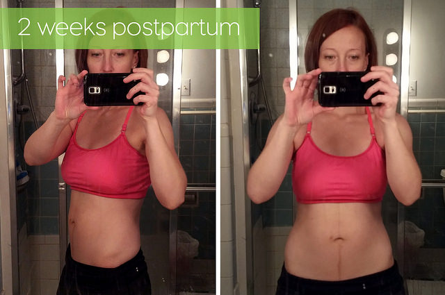 2 weeks postpartum - Kohler Created